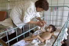 Niño internado con desnutrición grave